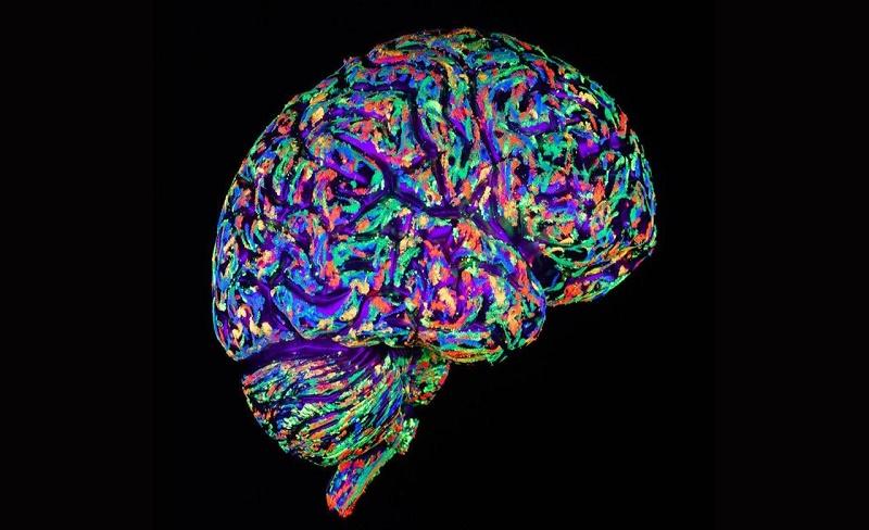 Ingin Otak Awet Muda? Lakukan Hal Ini!