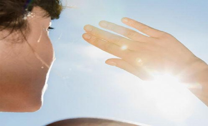 alergi-matahari