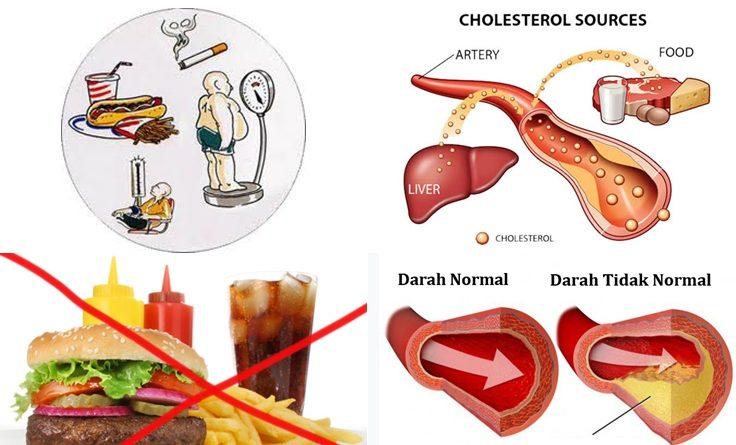 Turunkan Kolesterol Tubuh dengan Minuman dan Makanan Fungsional