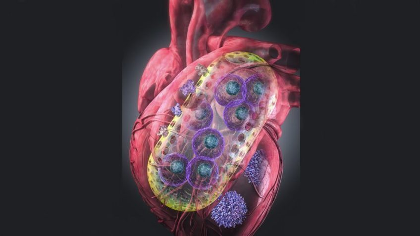 Teknologi Nanogel Memberikan Harapan bagi Penderita Penyakit Jantung
