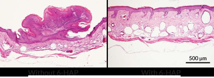 Sel tumor mulai muncul pada kulit tikus yang diberi perlakuan dengan strain S. epidermidis yang tidak dapat menghasilkan senyawa 6-HAP dan disinari sinar UV (kiri). Kulit pada tikus yang diberi perlakuan strain S. epidermidis yang menghasilkan senyawa 6-HAP tetap normal meskipun disinari dengan sinar UV (kanan).