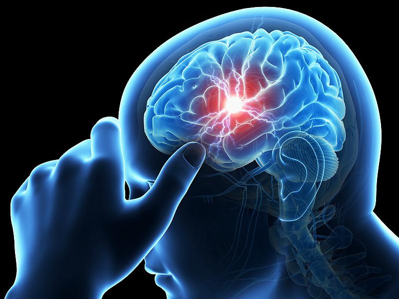 Risiko Penyembuhan Stroke dengan Terapi Cuci Otak