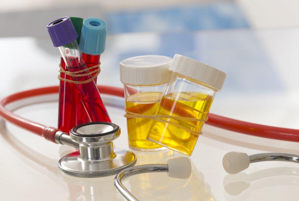 Peneliti Jepang Menggunakan Sampel Urin untuk Deteksi Kanker