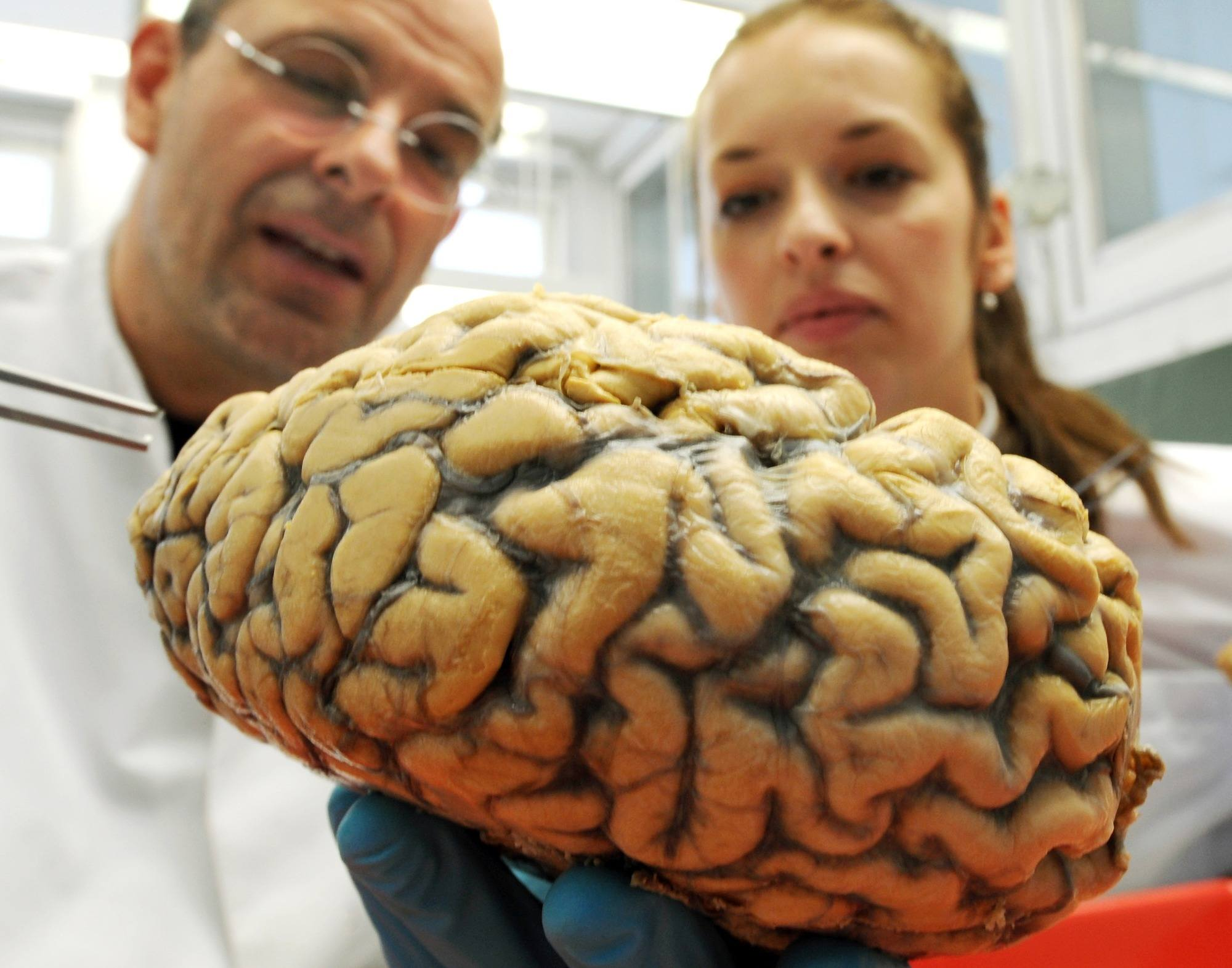 Seorang Ilmuwan Berhasil Membuat Otak Babi Tetap Berfungsi di Luar Tubuh
