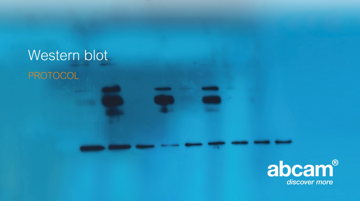 Western blot protocol video - Abcam