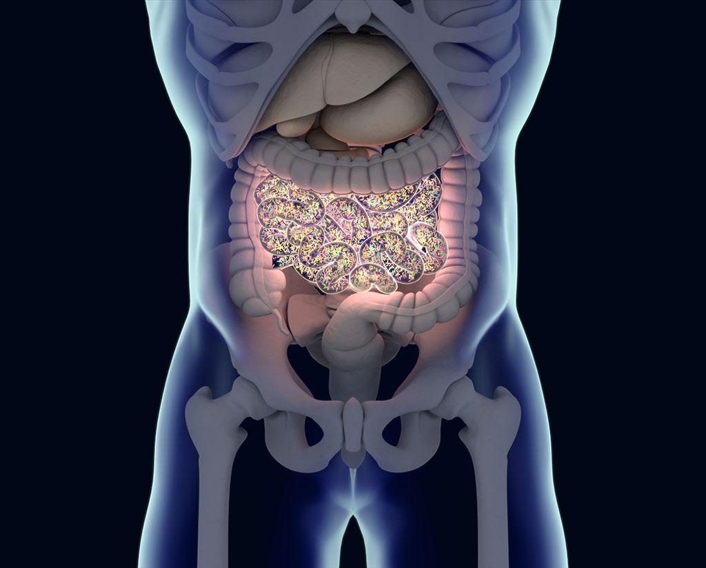 Bakteri Usus Dapat Mencegah Penyakit Diabetes Yang Terkait dengan Usia
